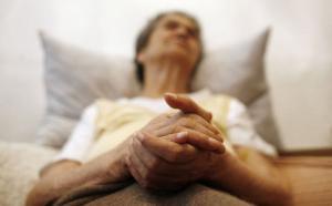 Перечень признаков Альцгеймера