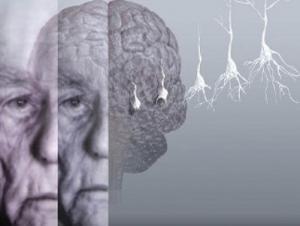 Как проявляется сенильная деменция
