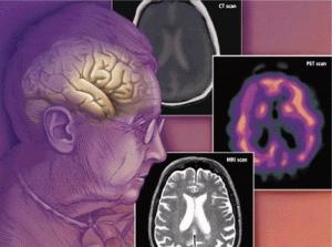 Симптомы лобно-височной деменции