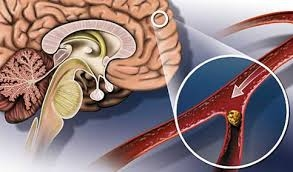 Причины развития мигрени