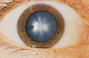 Что такое глазная форма мигрени