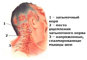 Что такое неврит затылочного нерва